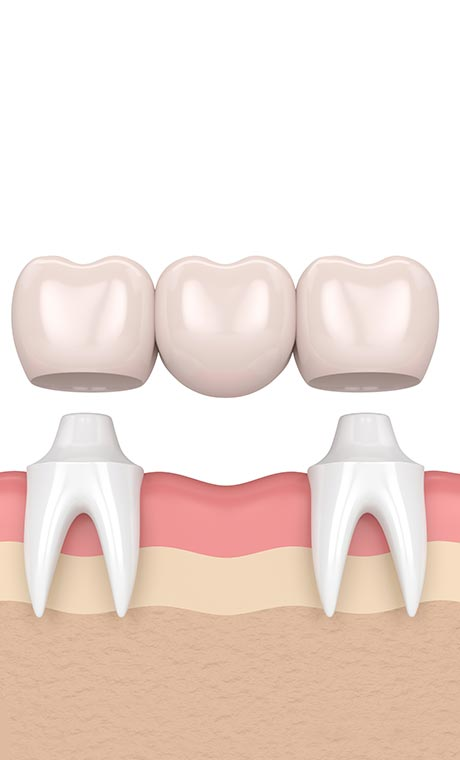 dental-crowns-in-double-bay